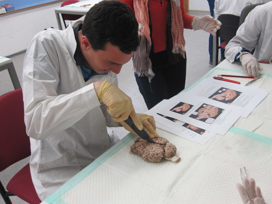 Brain dissection experience at the Hebrew University in Isreal