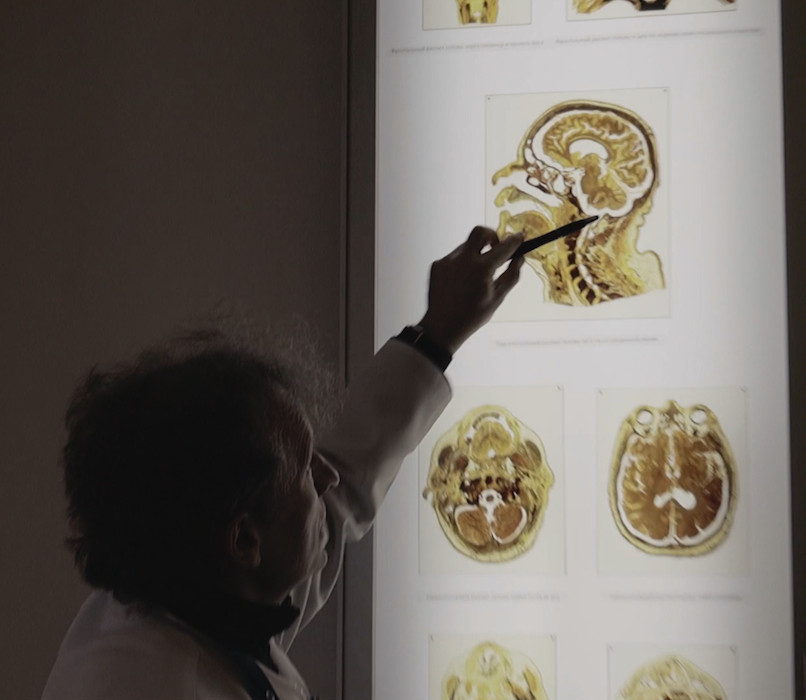 Looking at human brain anatomy at a virtual Museum Tour organized by First Pavlov State Medical University, St. Petersburg in Russia.